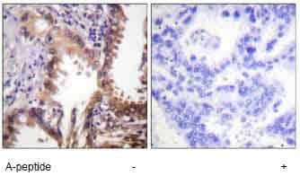Immunohistochemistry (Formalin/PFA-fixed paraffin-embedded sections) - Anti-KAT3A / CBP (acetyl K1535) antibody (ab61242)