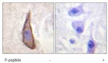 Immunohistochemistry (Formalin/PFA-fixed paraffin-embedded sections) - Anti-CD226 (phospho S329) antibody (ab61790)