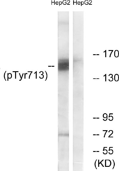 Western blot - Anti-CD31 (phospho Y713) antibody (ab62169)