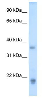 Western blot - Anti-GH2 antibody (ab62193)