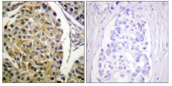 Immunohistochemistry (Formalin/PFA-fixed paraffin-embedded sections) - Anti-PKC delta (phospho Y313) antibody (ab62202)