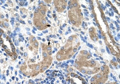 Immunohistochemistry (Formalin/PFA-fixed paraffin-embedded sections) - Anti-Cytochrome P450 2D6 antibody (ab62204)