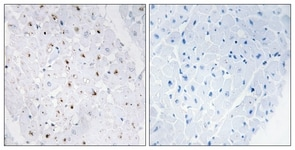 Immunohistochemistry (Formalin/PFA-fixed paraffin-embedded sections) - Anti-Blooms Syndrome Protein Blm (phospho T99) antibody (ab62206)