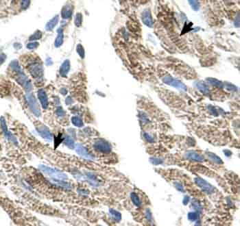 Immunohistochemistry (Formalin/PFA-fixed paraffin-embedded sections) - Anti-SLC25A38 antibody (ab62224)