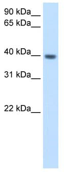 Western blot - Anti-ITGB1BP2 antibody (ab62300)
