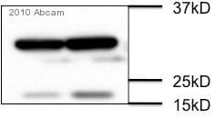 Western blot - Anti-RFP antibody (ab62341)