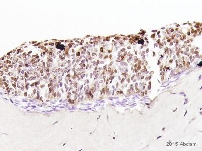 Immunohistochemistry (Formalin/PFA-fixed paraffin-embedded sections) - Anti-RFP antibody (ab62341)
