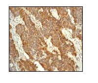 Immunohistochemistry (Formalin/PFA-fixed paraffin-embedded sections) - Nrf2 antibody [EP1808Y] - Carboxyterminal end (ab62352)