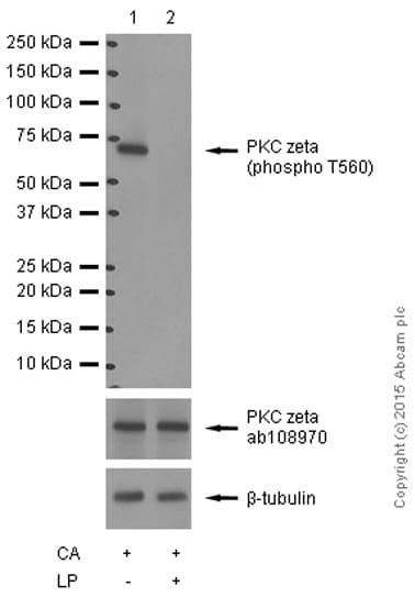 Western blot - Anti-PKC zeta (phospho T560) antibody [EP2037AY] (ab62372)