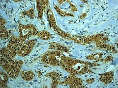 Immunohistochemistry (Formalin/PFA-fixed paraffin-embedded sections) - Anti-PKC zeta (phospho T560) antibody [EP2037AY] (ab62372)