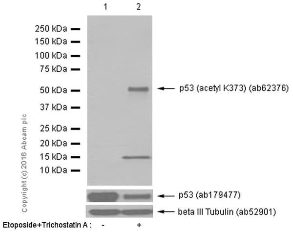 Western blot - Anti-p53 (acetyl K373) antibody [EP356(2)AY] (ab62376)