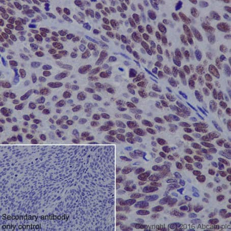 Immunohistochemistry (Formalin/PFA-fixed paraffin-embedded sections) - Anti-p53 (acetyl K373) antibody [EP356(2)AY] (ab62376)