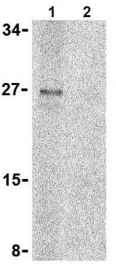 Western blot - Anti-TNFRSF14 antibody (ab62462)