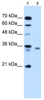 Western blot - Anti-RCE1 antibody (ab62531)