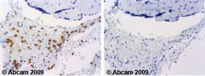 Immunohistochemistry (Formalin/PFA-fixed paraffin-embedded sections) - Anti-LAMP1 antibody (ab62562)