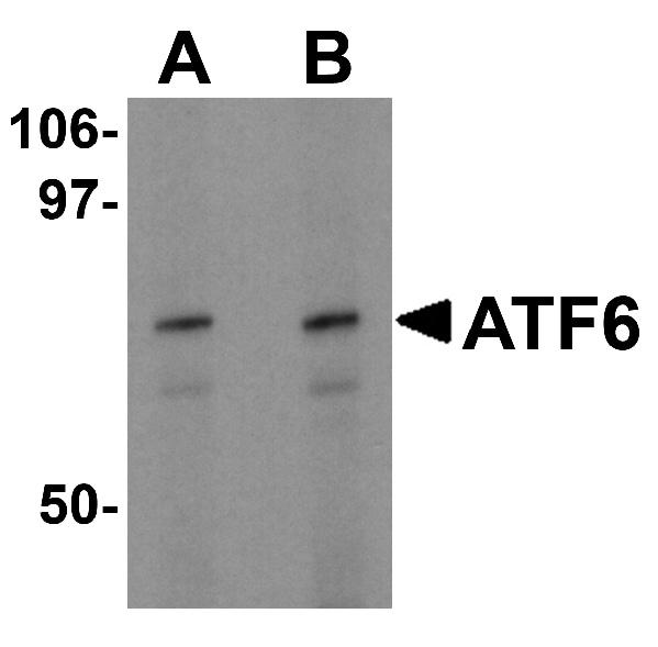 Western blot - Anti-ATF6 antibody - Carboxyterminal end (ab62576)