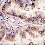 Immunohistochemistry (Formalin/PFA-fixed paraffin-embedded sections) - Anti-STK39 antibody (ab62913)