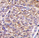Immunohistochemistry (Formalin/PFA-fixed paraffin-embedded sections) - Anti-TAOK3 antibody (ab62915)