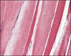 Immunohistochemistry (Formalin/PFA-fixed paraffin-embedded sections) - Anti-DDR2 antibody [3B11E4] (ab63337)