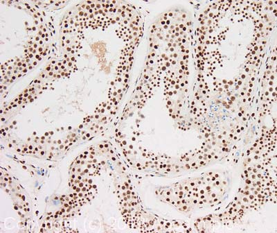 Immunohistochemistry (Formalin/PFA-fixed paraffin-embedded sections) - Anti-NIPA antibody (ab63375)