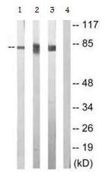 Western blot - Anti-PKC epsilon (phospho S729) antibody (ab63387)