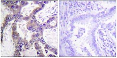 Immunohistochemistry (Formalin/PFA-fixed paraffin-embedded sections) - Anti-DUSP1 (phospho S359) antibody (ab63548)