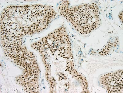 Immunohistochemistry (Formalin/PFA-fixed paraffin-embedded sections) - Anti-NIPA (phospho S354) antibody (ab63557)