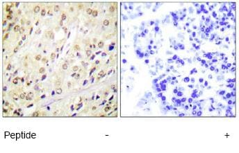 Immunohistochemistry (Formalin/PFA-fixed paraffin-embedded sections) - Anti-Smad2 antibody (ab63576)