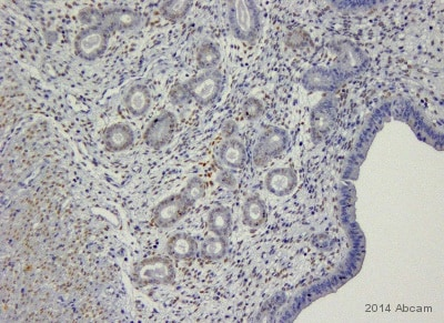 Immunohistochemistry (Formalin/PFA-fixed paraffin-embedded sections) - Anti-Progesterone Receptor antibody (ab63605)