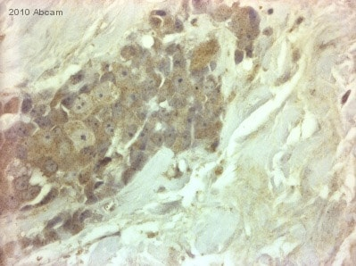Immunohistochemistry (Formalin/PFA-fixed paraffin-embedded sections) - Anti-MMP3 antibody (ab63853)