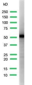 Western blot - Anti-Cytokeratin 5 antibody [SP27], prediluted (ab64080)