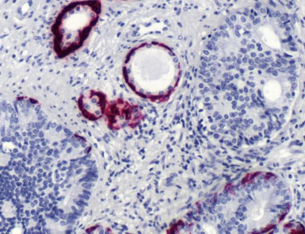 Immunohistochemistry (Formalin/PFA-fixed paraffin-embedded sections) - Anti-Cytokeratin 5 antibody [SP27] (ab64081)