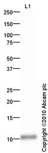Western blot - Anti-PF4 antibody (ab64280)