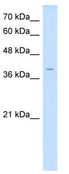 Western blot - Anti-LSAMP antibody (ab64427)
