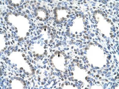 Immunohistochemistry (Formalin/PFA-fixed paraffin-embedded sections) - Anti-PHT1 antibody (ab64429)