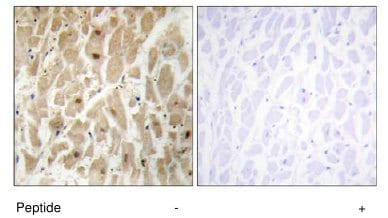 Immunohistochemistry (Formalin/PFA-fixed paraffin-embedded sections) - Anti-FOXD3 antibody (ab64807)