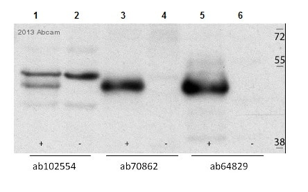 Western blot - Anti-Casein Kinase 1 gamma 2 antibody (ab64829)