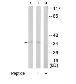 Western blot - Anti-ATP6IP2 antibody (ab64957)