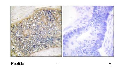 Immunohistochemistry (Formalin/PFA-fixed paraffin-embedded sections) - Anti-APRIL antibody (ab64967)