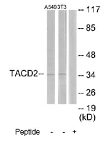 Western blot - Anti-TROP2 antibody (ab65006)