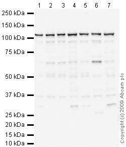 Western blot - Anti-SND1 antibody (ab65078)
