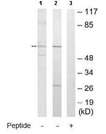Western blot - Anti-CYP2U1 antibody (ab65128)