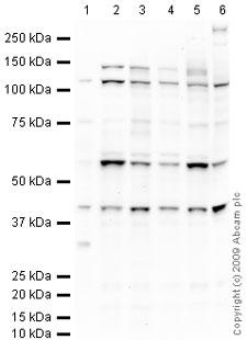 Western blot - Anti-Inversin antibody (ab65187)