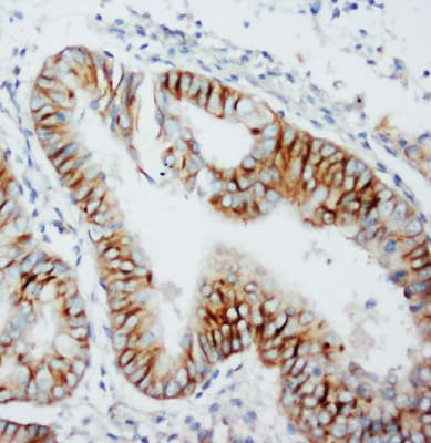 Immunohistochemistry (Formalin/PFA-fixed paraffin-embedded sections) - Anti-CCR5 antibody (ab65850)