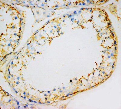 Immunohistochemistry (Formalin/PFA-fixed paraffin-embedded sections) - Anti-INSL3 antibody (ab65981)