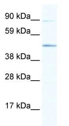 Western blot - Anti-ECSIT antibody (ab66380)