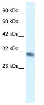 Western blot - Anti-FHL2 antibody (ab66399)