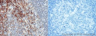 Immunohistochemistry (Formalin/PFA-fixed paraffin-embedded sections) - Anti-CD82 antibody (ab66400)