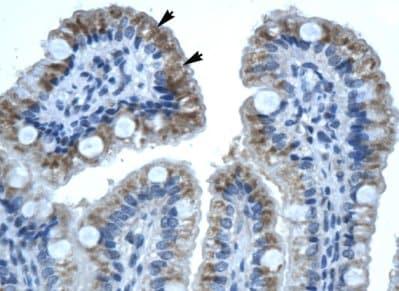 Immunohistochemistry (Formalin/PFA-fixed paraffin-embedded sections) - Anti-Connexin 32 / GJB1 antibody (ab66613)