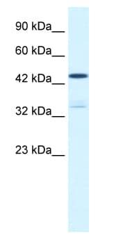 Western blot - Anti-KCNAB3 antibody (ab66625)